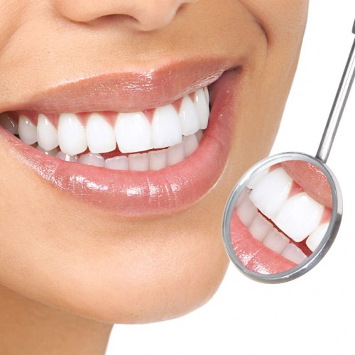 smile-tandblekning